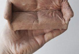 10 utilidades bizarras para pele humana