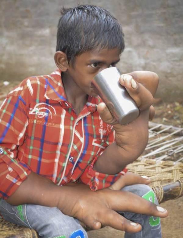 menino-indiano-tem-maos-gigantes-de-33-centimetros-2