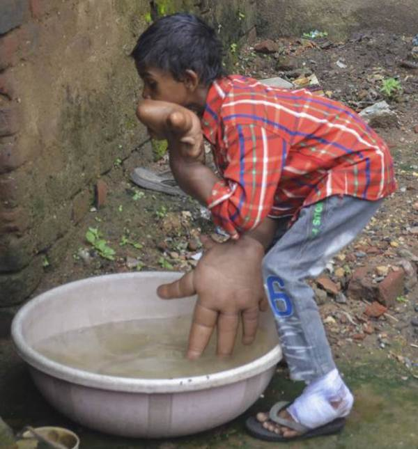 menino-indiano-tem-maos-gigantes-de-33-centimetros-6