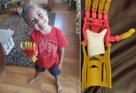 Prótese do Homem de Ferro faz a alegria de um menino